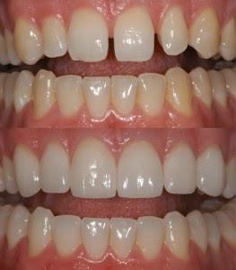 Résultat facettes dentaires