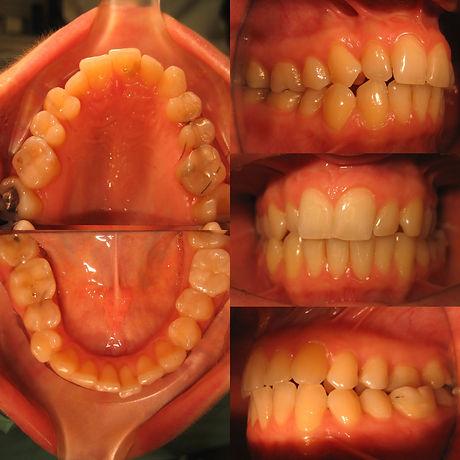 orthodontics-woman-41-before.jpg