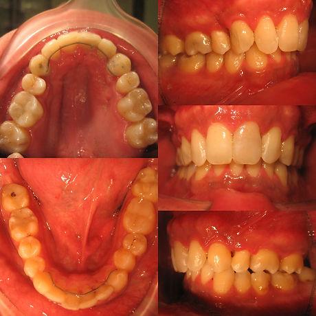 orthodontics-man-23-after.jpg