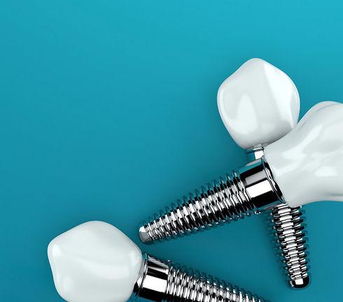 implantology-3.jpg