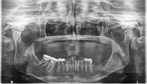 pterygoid-woman-44-before.jpg