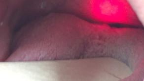 Rhonchopathie mit dem Laser - nichtinvasiv und schmerzfrei