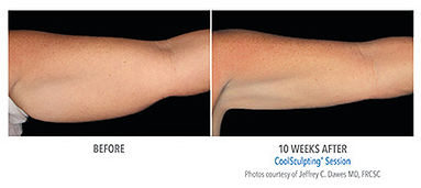 A before and after image of an arm after undergoing Coolsculpting treatment from Age-Less Weigh-Less in Dover, NH