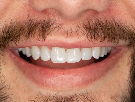 10 coisas que você gostaria de saber sobre clareamento dental