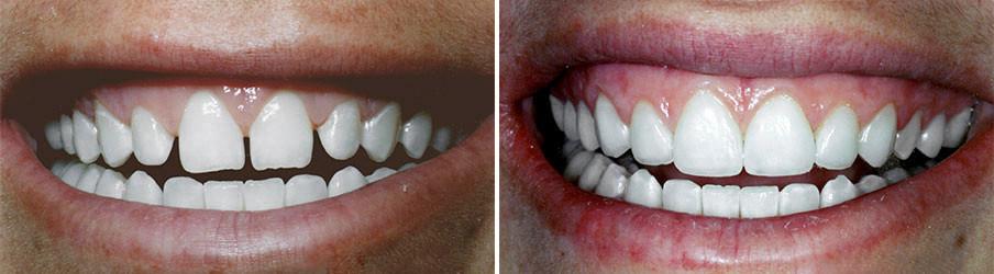 Espaços escuros entre os dentes