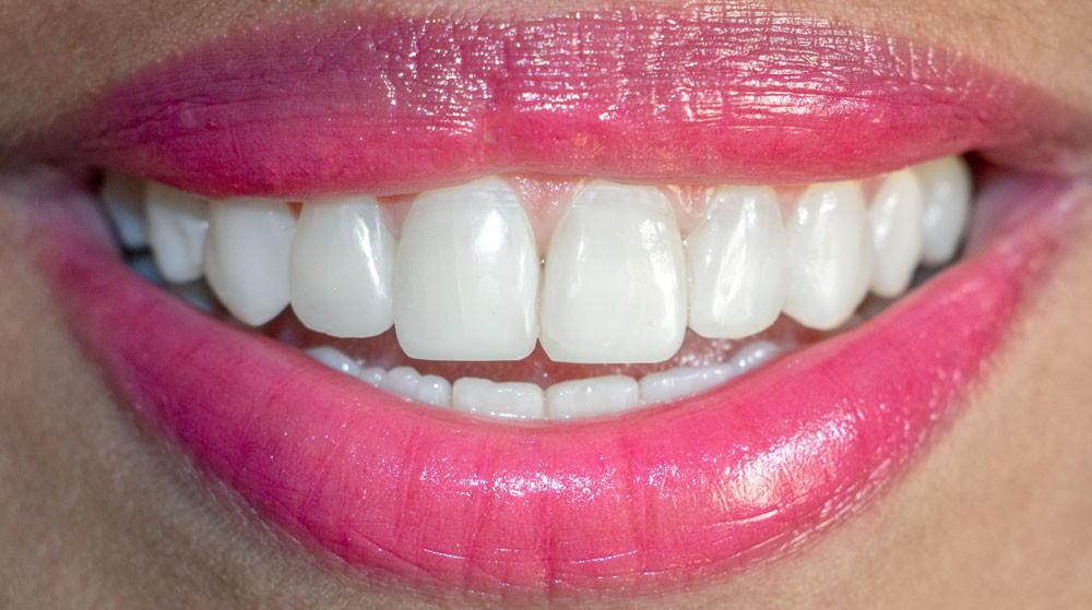 Sorriso restaurado