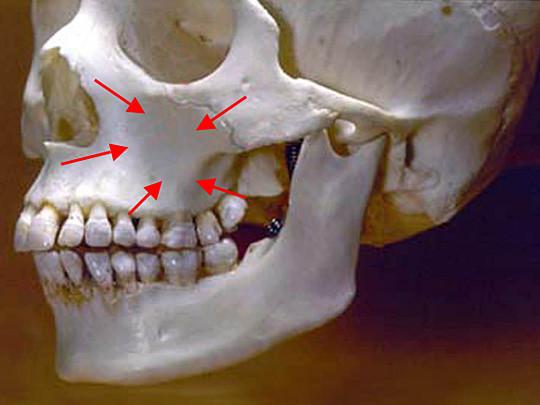 Osso maxilar que abriga o seio maxilar