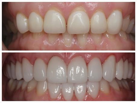 Dentes curtos e mais 9 problemas no sorriso que envelhecem você!