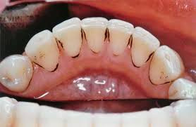 Dentes manchados por bactérias
