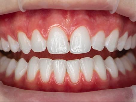 Clareamento Dental Artesania Studio Oral
