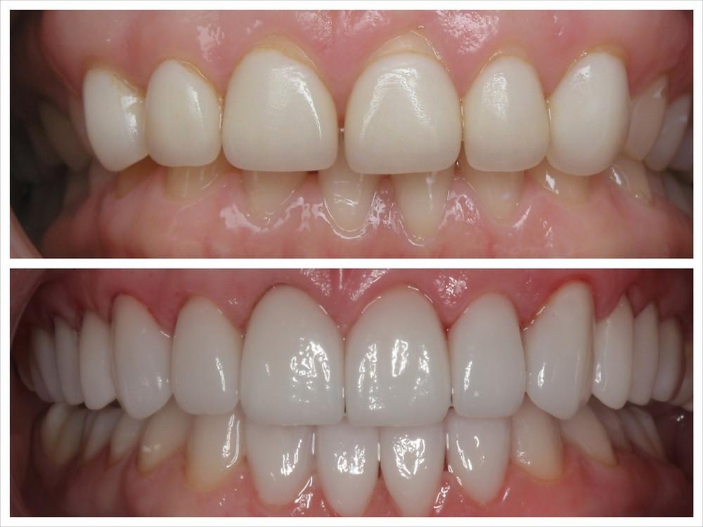 Dentes anteriores curtos e linha da gengiva inadequada