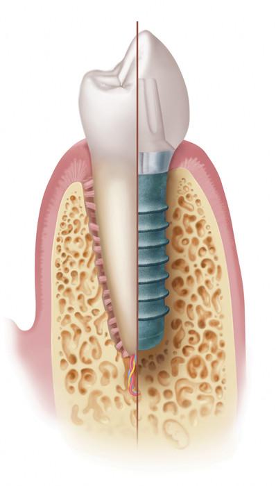 Dente X Implante