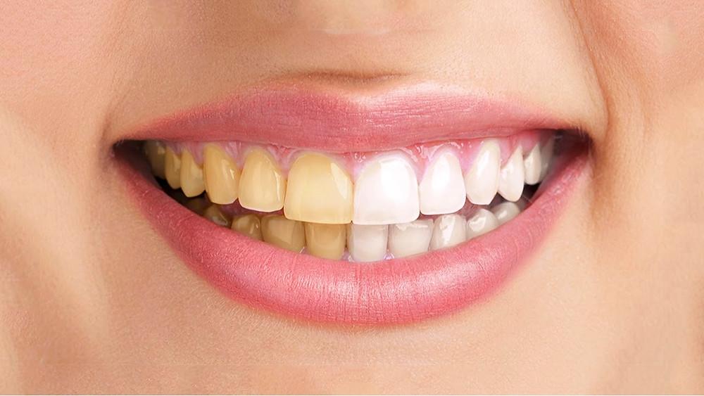 Dentes_amarelos