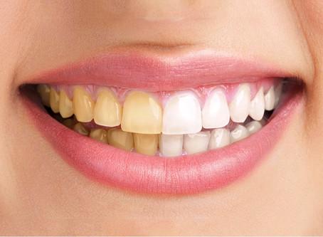 7 razões do escurecimento dental