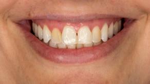 """Aquela """"pessoa do dente amarelo"""""""