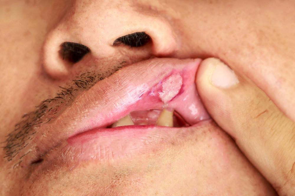 Afta no lábio superior