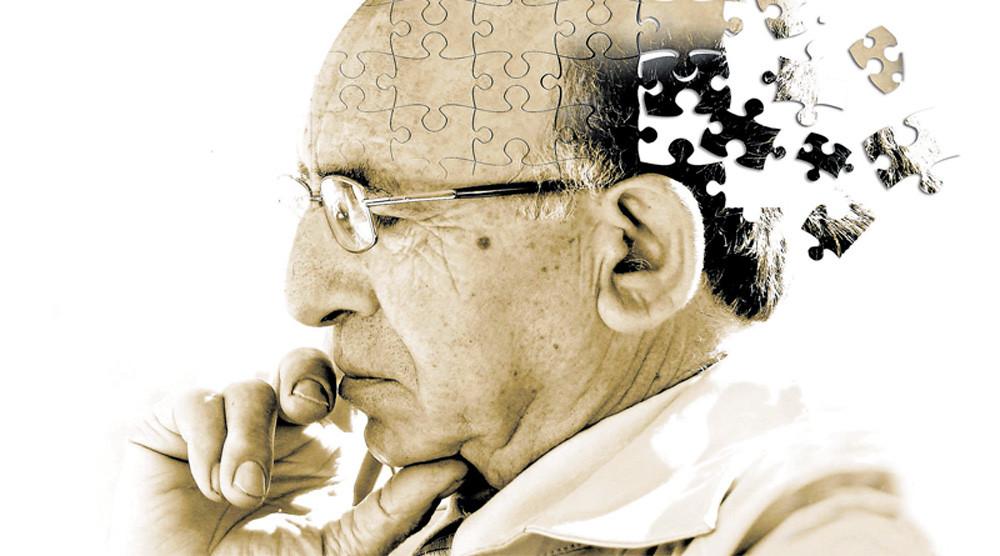 Alzheimer e doença de gengiva