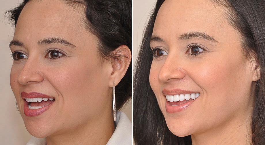 Envelhecimento do sorriso