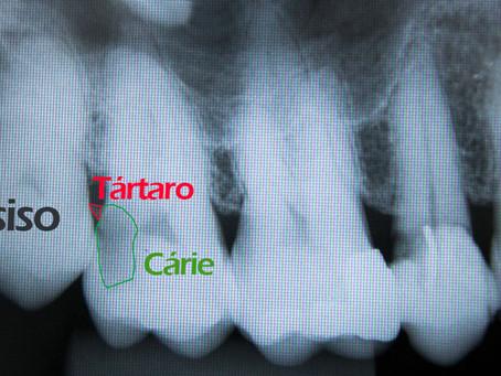 Seus dentes podem estar ameaçados pelos sisos!