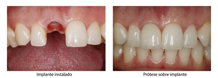 Implantes, antes e depois