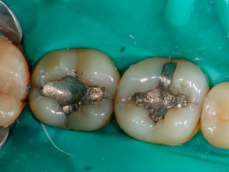 Intoxicação por mercúrio odontológico