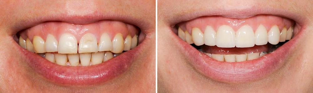 Erosão Dental tratada