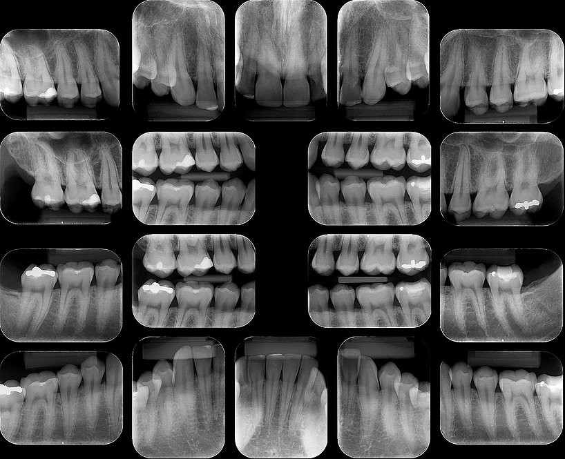 Radiografias Periapicais