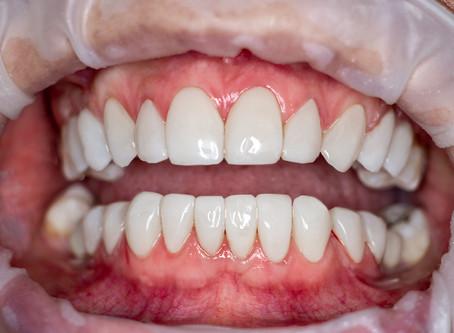 O que não te contam sobre as lentes de contato dental