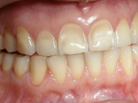 6 Sinais da Erosão Dental