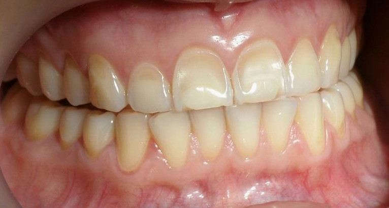 Erosão Dental Vestibular