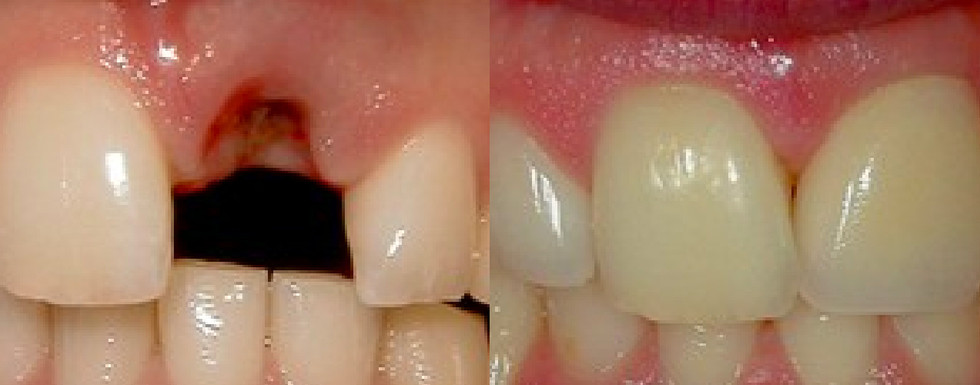 Crowns (Caps) Dental Implants Porcelain Crowns (Caps)