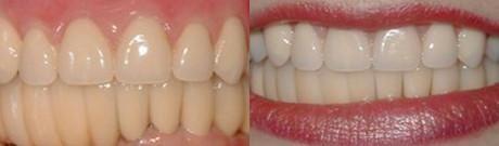 Crowns (Caps) Dental Implants Dentures & Partial Dentures Porcelain Crowns (Caps)