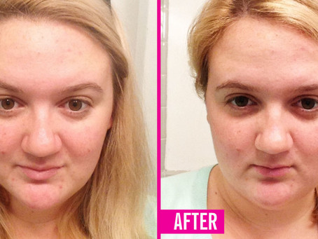 Cryotherapy helps young woman treat Acne [Cosmopolitan Magazine]