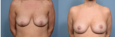 Breast Augmentation, Patient 8 front.jpg