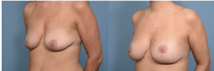 Breast Augmentation, Patient 8 left 45.jpg