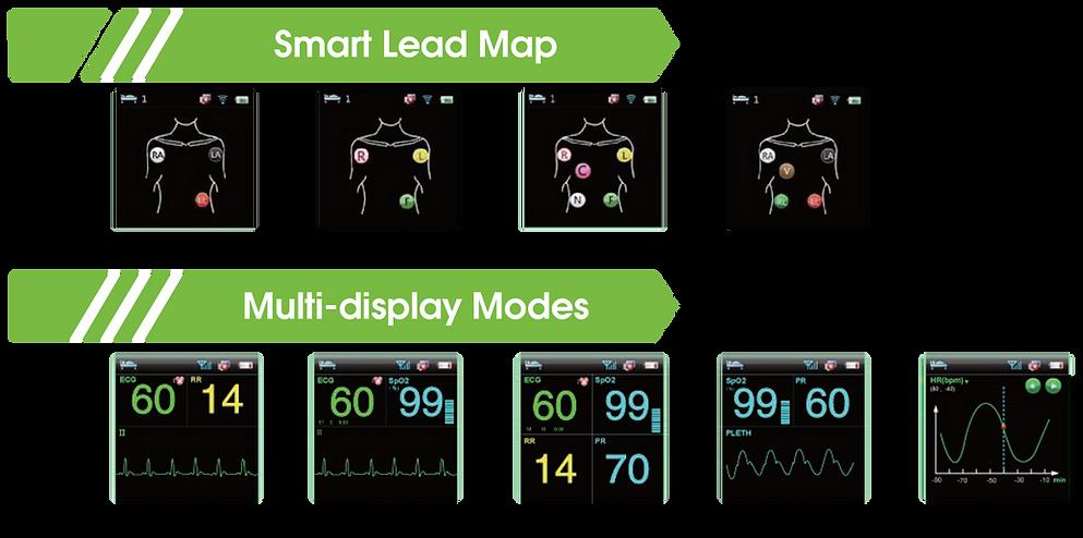 Smart Lead Detection