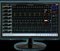 CardioVision Cardiac Rehab Central Station