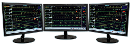 CardioVision Real-Time Mobile Telemetry Central Station