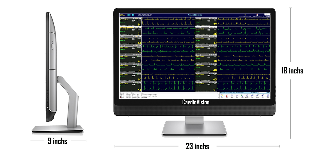 CardioVision Solo compact Telemetry Station