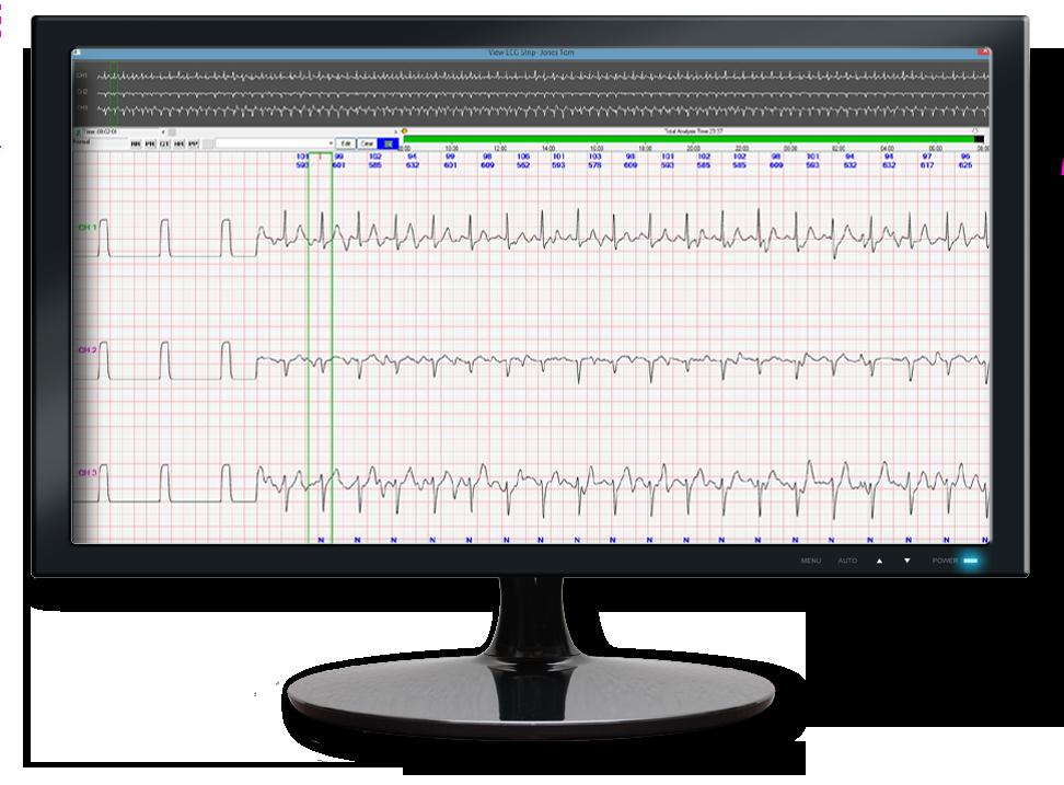 Enlarged ECG Display