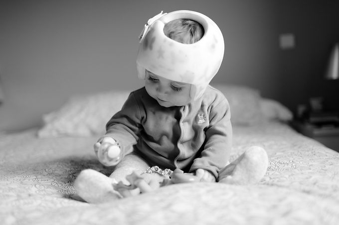 baby%20with%20helment%20for%20%20Plagioc