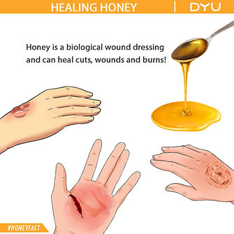 DYU Pure Raw Honey, DYU Pure Artisanal Honey, DYU Pure Natural Honey, Healing powers of DYU honey, DYU Honey's Antiseptic properties, DYU honey heals burn wounds