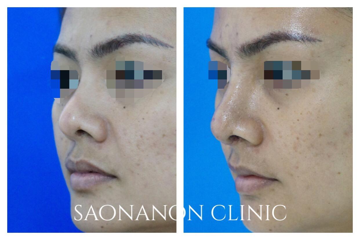 short nose correction