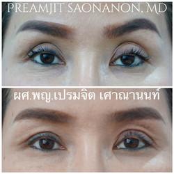 แก้ตา 2 ชั้น แก้ตา ทำตาสองชั้น เปิดหัวตา หนังตาตก