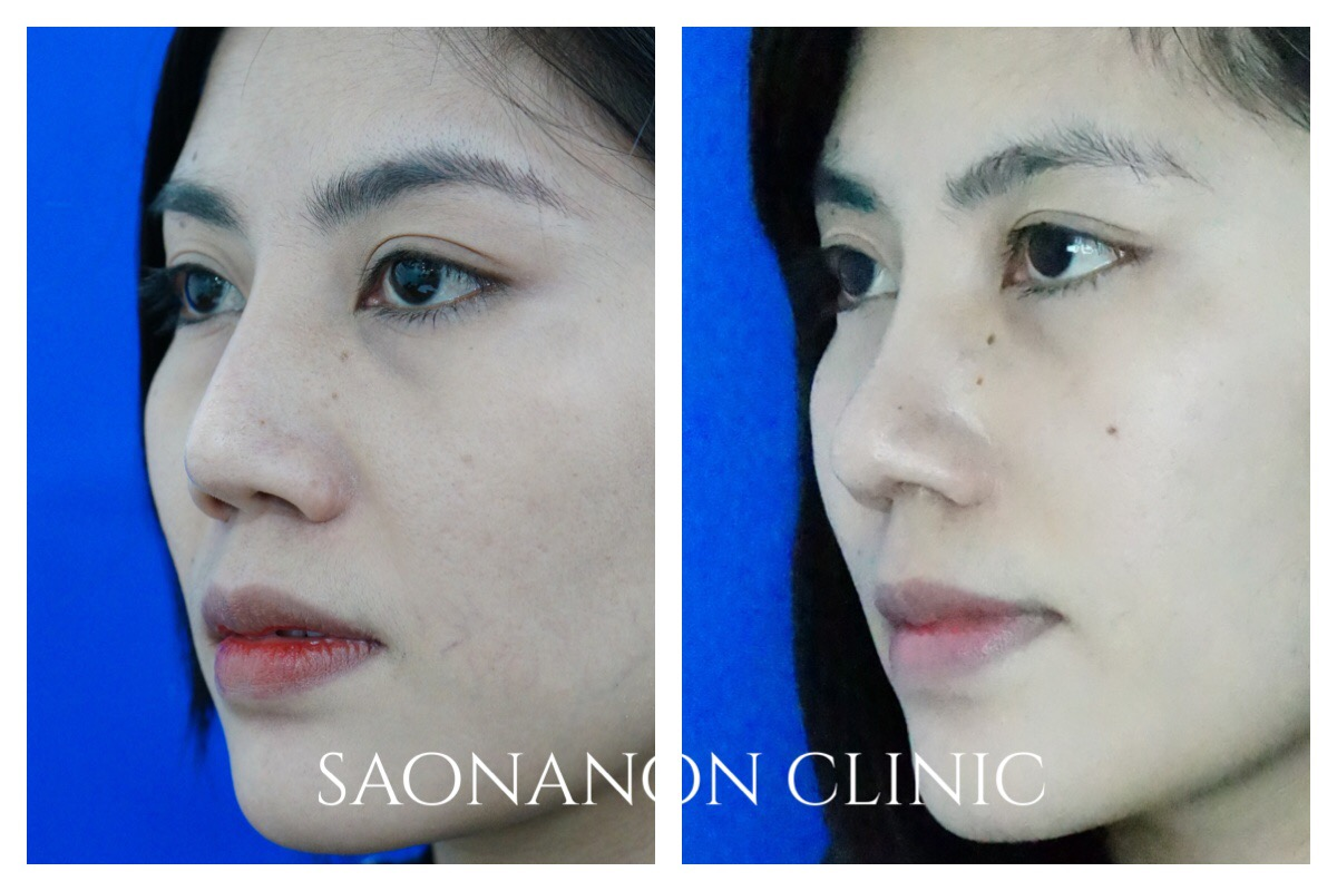 large nasal bone correction