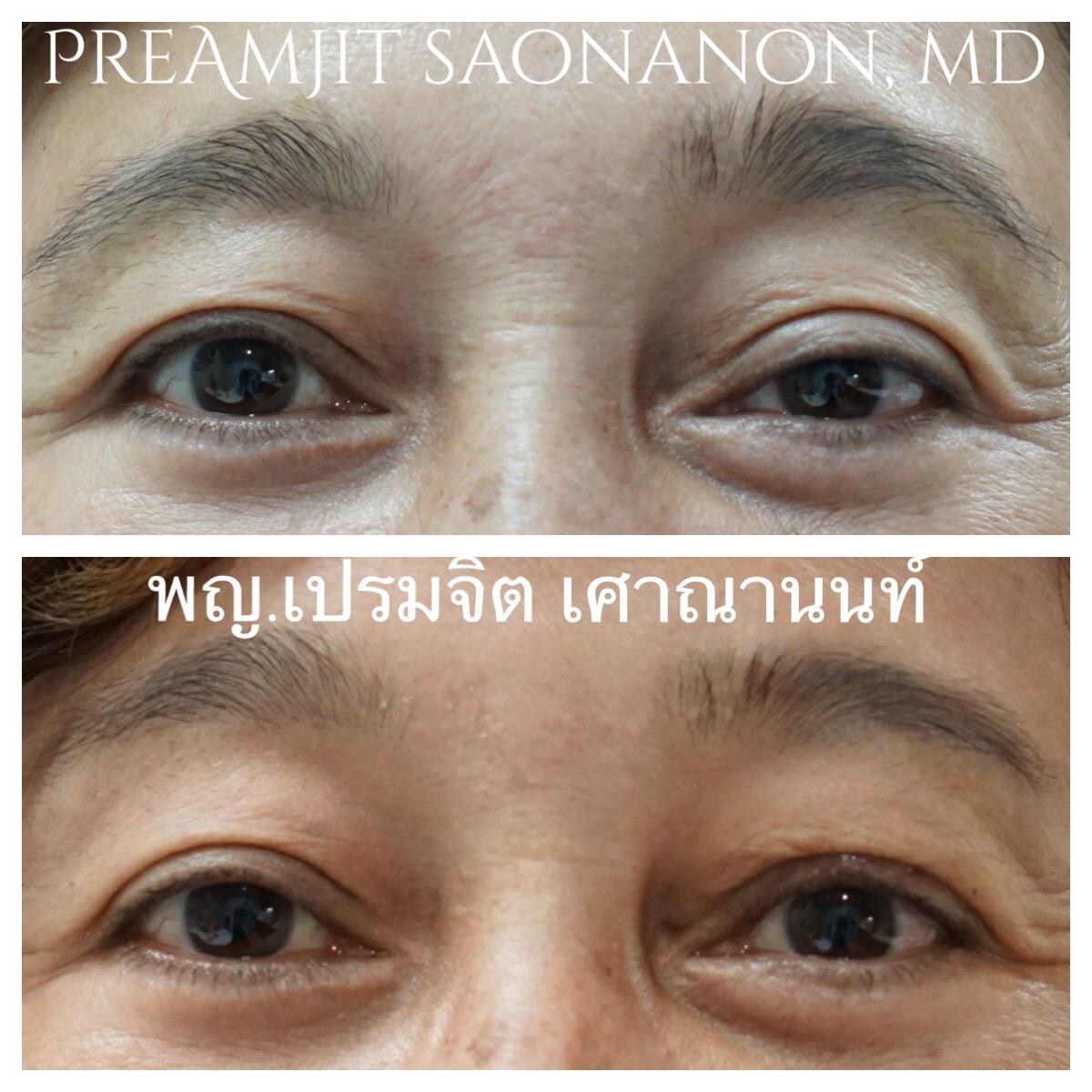 แก้ไขหนังตาตกจากการผ่าตัด