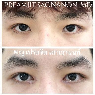 ศัลยกรรมเปิดหัวตาคืออะไรทำตาสองชั้น เปิดหัวตา หนังตาตก