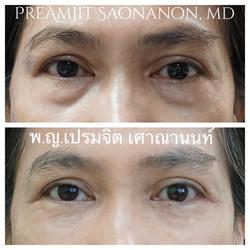 ผ่าตัดถุงใต้ตาและฉีดเติมไขมันที่ร่องแก้ม
