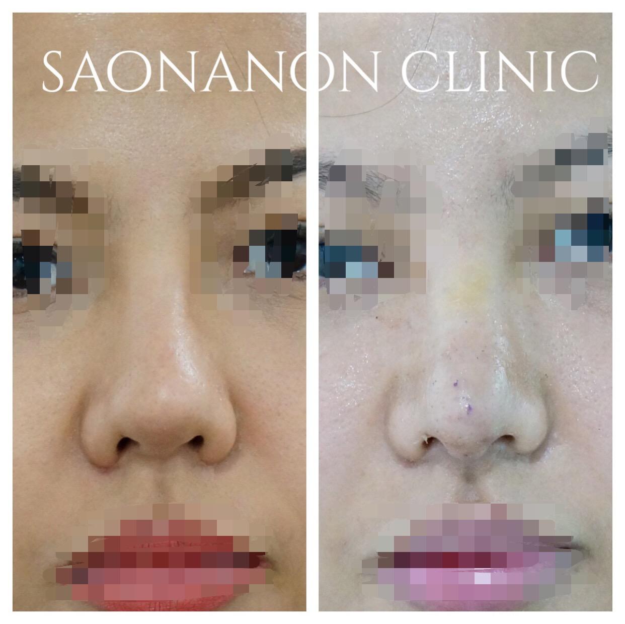 Nasal asymmetry from surgery
