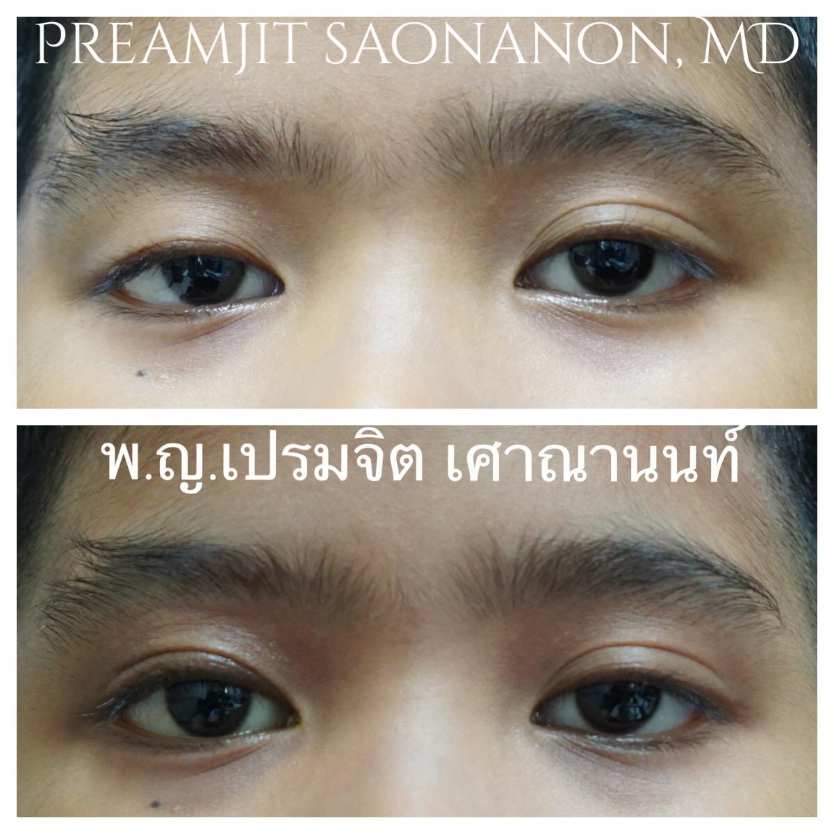 หนังตาตกแต่กำเนิดตาขวา